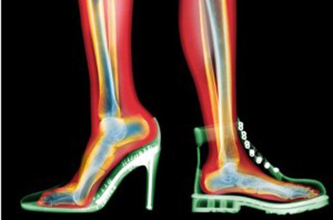 7c4b87fa9cb Είναι σίγουρο πως κάθε γυναίκα έχει στην γκαρνταρόμπα της ένα ζευγάρι  παπούτσια που κάνει κακό στα πόδια.