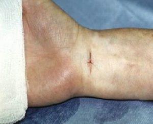 Με την ενδοσκοπική διάνοιξη του καρπιαίου σωλήνα η τομή του δέρματος εντοπίζεται στον καρπό και είναι της τάξης του 1 εκ.