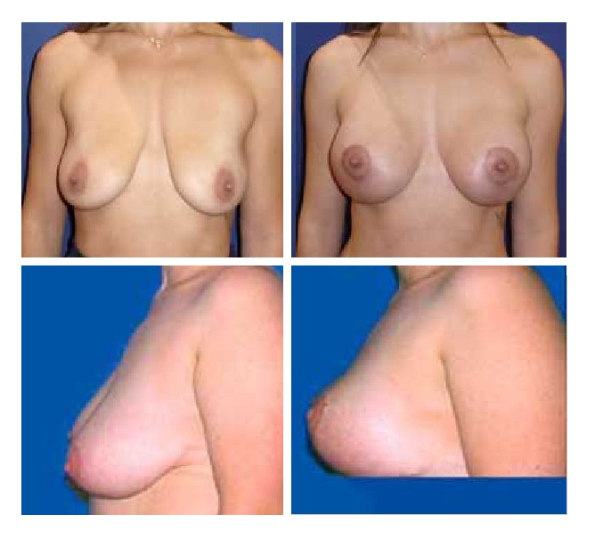 Ανόρθωση στήθους πριν-μετά