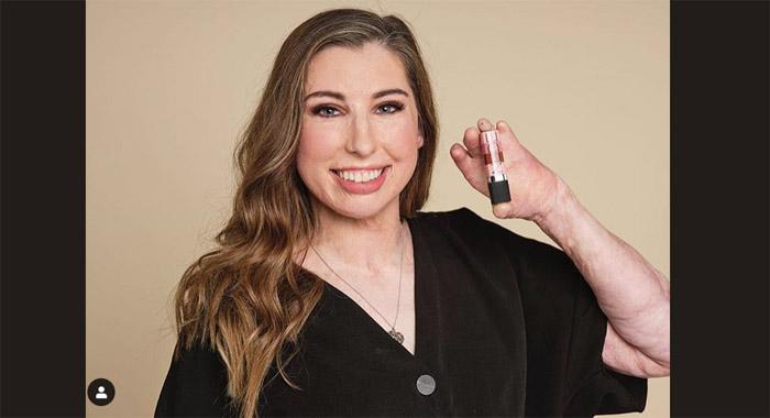 Το νέο πρόσωπο της Avon είναι μια γυναίκα με εγκαύματα στο 96% του κορμιού της