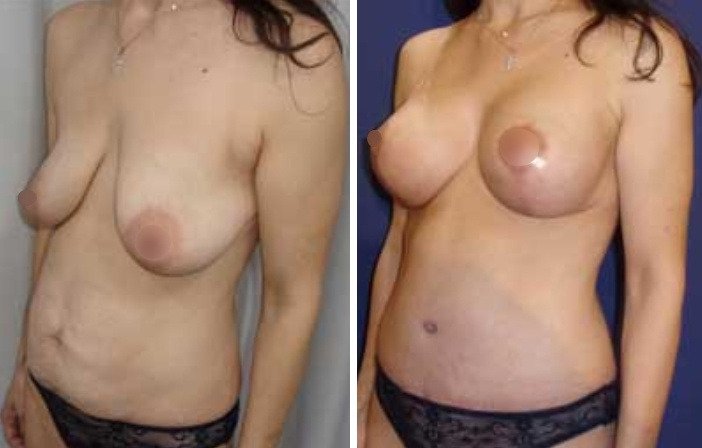 """Κοιλιοπλαστική φωτογραφίες """"πριν - μετά"""""""